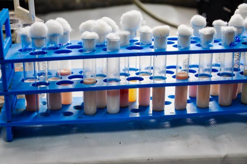 MRTs in India - Lab work